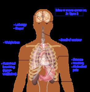 Diabetes symptomen